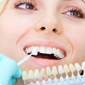Профилактика зубных отложений